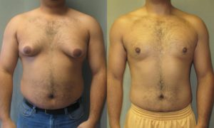 Breast growth using steroid